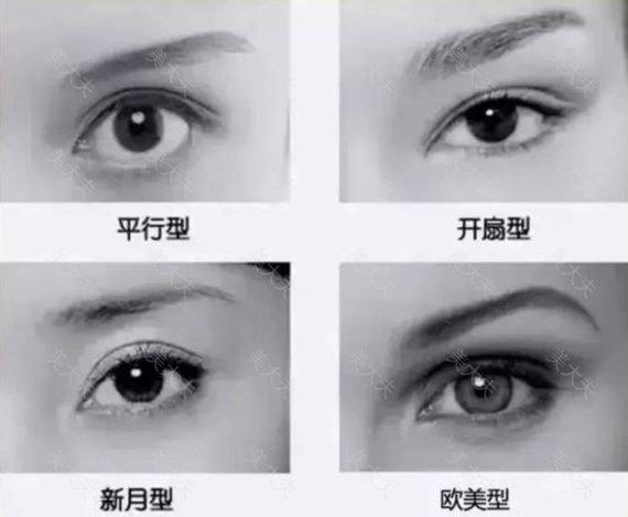 整形医生林威说:怎么样选择适合自己的双眼皮?