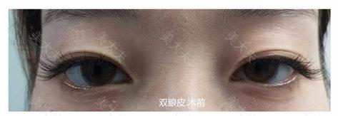 双眼皮.术前基础